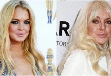 Lindsay-Lohan-Plastic-Surgery3-660x330