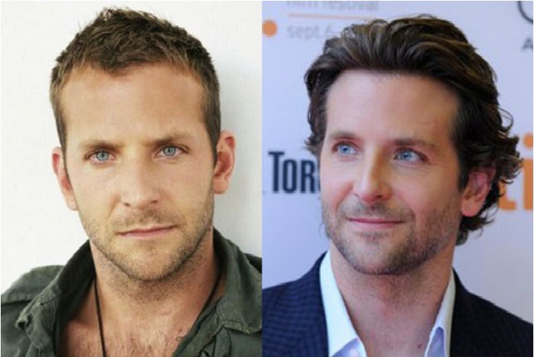 50 Famous Men Who Have Done Plastic Surgery Ritely