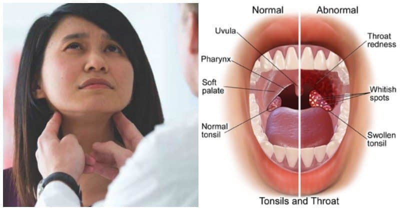 White Spots on Tonsils: Should You Panic? - Ritely